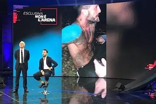 """Fabrizio Corona: """"Mi hanno picchiato e accoltellato. I Carabinieri accorsi non hanno fatto nulla"""""""