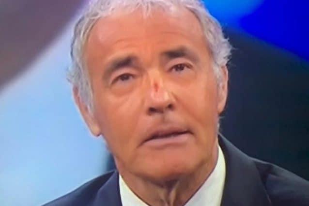Non è l'Arena, Massimo Giletti conduce con una ferita al naso