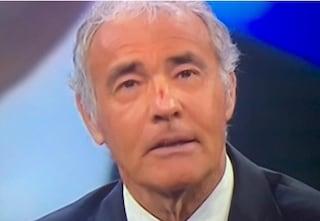 Massimo Giletti in diretta con una ferita al naso, incidente per il conduttore di La7