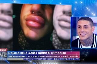 """Chiofalo: """"Labbra gonfie a causa di un'allergia, pensano sia rifatto perché sono troppo bello"""""""