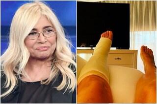 "Mara Venier conferma: ""Frattura al piede, olé"", la foto dell'ingessatura"