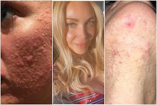 """Laura Cremaschi mostra l'acne: """"Doloroso, era il 2015 e le risate maligne erano come pugnalate"""""""