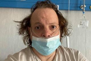 Dado è positivo al Coronavirus, ricoverato in ospedale: le condizioni di salute del comico