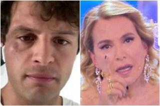 """""""Non mi usi!"""": Barbara D'Urso contro Iconize, ex di Tommaso Zorzi accusato di finta aggressione"""