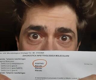 L'attore Giovanni Scifoni di Doc-Nelle tue mani positivo al Covid