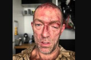 Vincent Cassel con il volto sanguinante e tumefatto, è solo una foto di scena del suo nuovo film