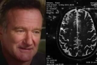 """Sei anni dal suicidio di Robin Williams, il docufilm rivela: """"Il suo cervello si era disintegrato"""""""