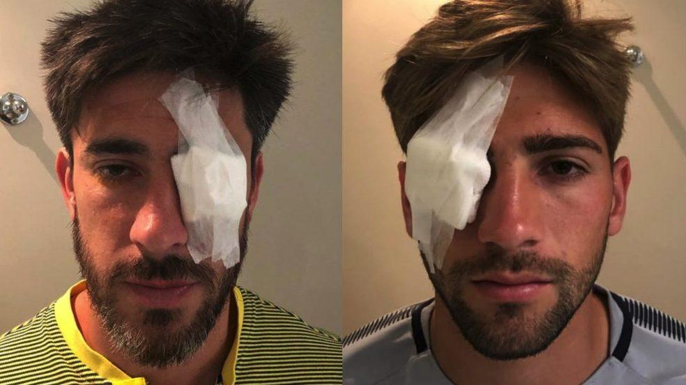 Perez e Lamardo feriti dopo l'aggressione.