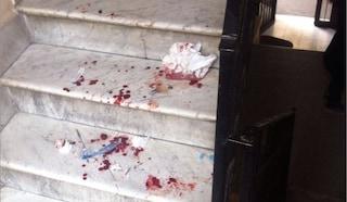 Casal Bruciato, massacra la compagna e la nasconde in stanza: sul pavimento sangue e capelli