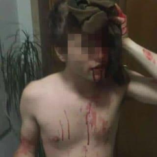 Roma, 20enne picchiato a Ponte Milvio da dieci ragazzi ubriachi: è caccia al branco