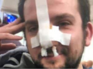 Antonio Atte dopo essere stato medicato in ospedale
