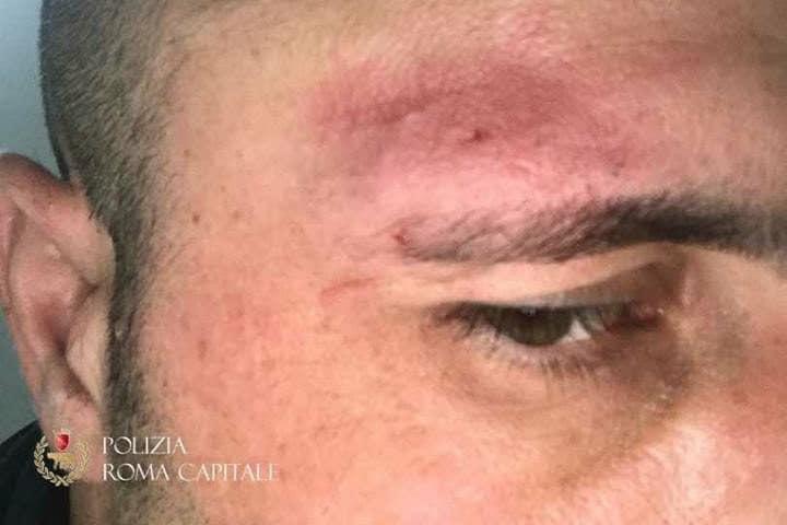 Il vigile urbano ferito durante un controllo a Roma