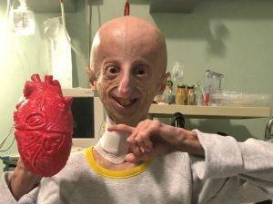 Sammy Basso, affetto da progeria, dopo l'operazione al cuore