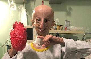"""Sammy Basso operato a Roma: """"Non mollate, c'è speranza per che ha la progeria"""""""