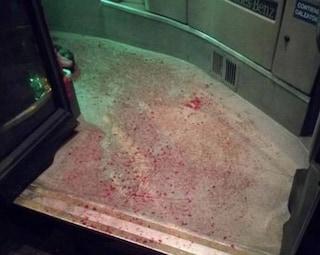 Ciampino, tre minori accoltellati al viso e alla gola salvati dall'autista del bus