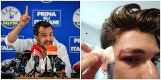 """Cinema America, Salvini sull'aggressione squadrista: """"Colpa mia? Combattiamo ogni tipo di violenza"""""""