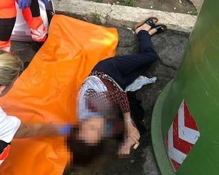 Roma, cade in un tombino per gettare rifiuti nel cassonetto: mano rotta e lesione alla colonna
