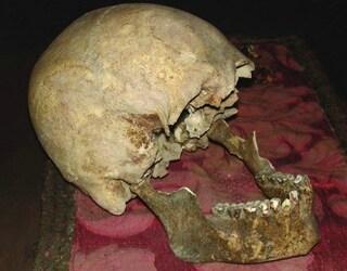 Roma, forse di Plinio il Vecchio il cranio conservato all'Accademia di Arte Sanitaria