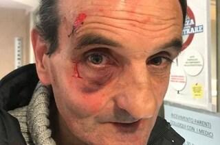 Roma, non vogliono pagargli 20 euro di corsa: tassista preso a pugni da tre clienti