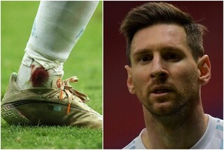 Messi martoriato in campo: gioca Argentina-Colombia con la caviglia insanguinata