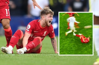 Terrificante infortunio per Elliott: gamba spezzata, Liverpool sotto shock