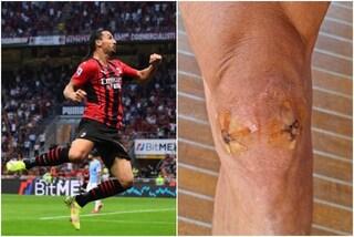Due buchi sul ginocchio, la foto di Ibrahimovic è impressionante