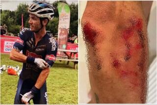 Investito e aggredito con un machete durante l'allenamento: l'incubo del ciclista Richardson