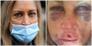 """Linda massacrata di botte dal marito: """"Non avevo un centimetro sul corpo senza lividi o ferite"""""""