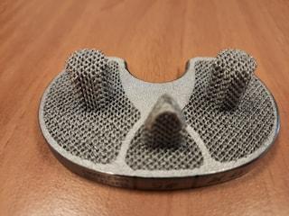 Al policlinico Gemelli la prima protesi del ginocchio costruita da una stampante 3D