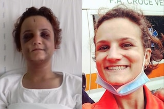 """La testimonianza di Beatrice, volontaria della Croce Verde: """"Così dopo 4 giorni di botte dal mio ex"""""""