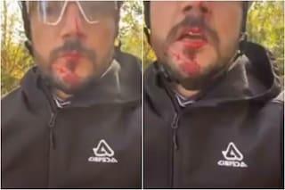 Bergamo, filo spinato ad altezza uomo: il ciclista Juri Ambrosioni sfregiato al volto