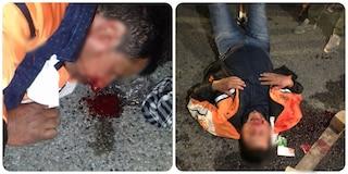 Tensione fuori da un presidio Fedex-Tnt: operai picchiati brutalmente con sassi e bastoni