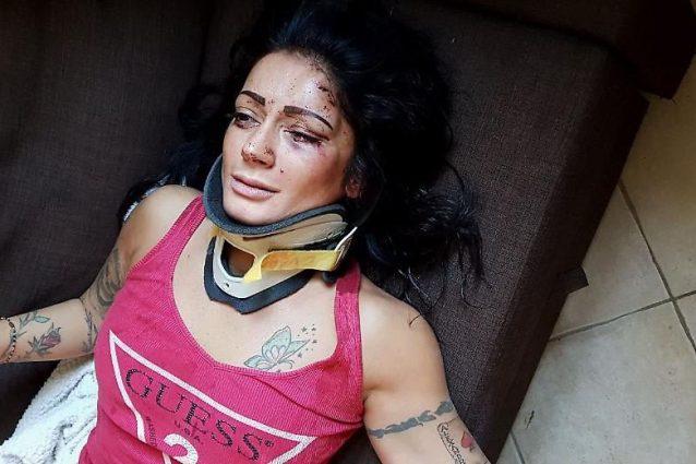 La ragazza picchiata