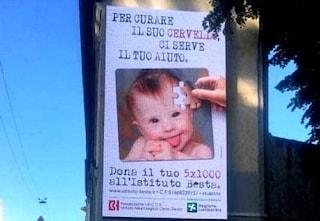 """Milano, polemiche per la pubblicità dell'Istituto Besta: """"La sindrome di Down non è una malattia"""""""