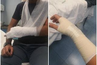 Milano, aggredisce un poliziotto e gli rompe una mano: in manette un 35enne