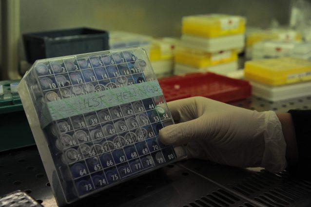 Test per diagnosi meningite