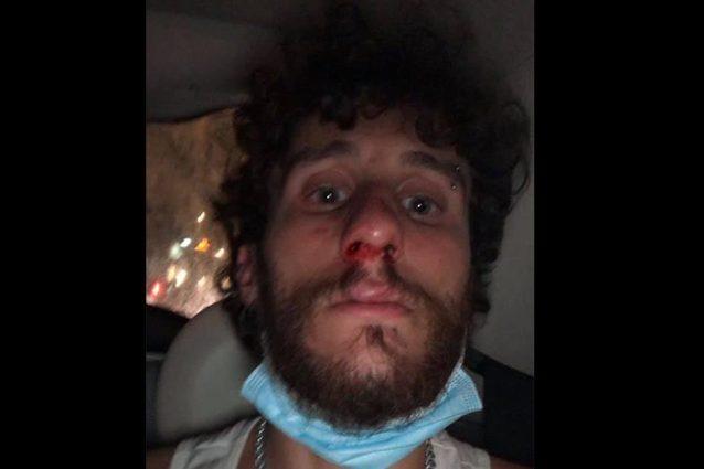La vittima, Gianmarco Vitagliano, dopo il pestaggio
