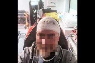Aggredito a martellate in testa nella stazione della metro Dante, ferito lavoratore Anm