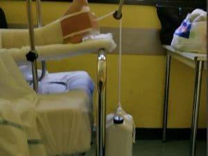 Il sistema per tenere in trazione la gamba del paziente all'ospedale Cardarelli (Foto Facebook/Figli delle chiancarelle)