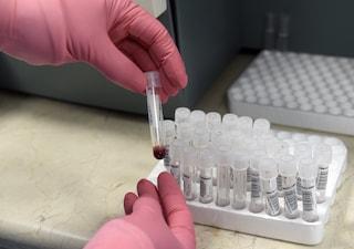 Influenza suina a Nocera Inferiore, contagiati 3 infermieri dell'ospedale Umberto I