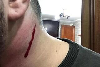 Napoli, ragazzo rapinato e ferito con una coltellata al collo al Rione Sanità