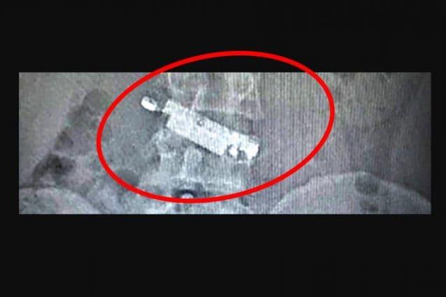 La radiografia del detenuto a Napoli che mostra il cellulare ingoiato