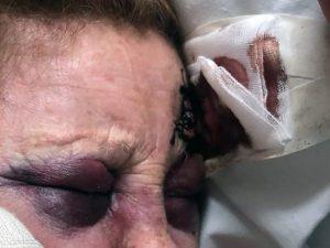 L'anziana ferita