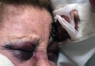 Aggressione disumana ad una vecchietta: scippata e lasciata in un lago di sangue