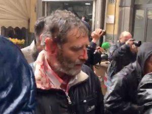 Il manifestante ferito davanti al teatro Sannazaro.