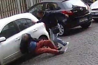 Non vuole pagare, sfregiato dal parcheggiatore abusivo: rimarrà per sempre sfigurato