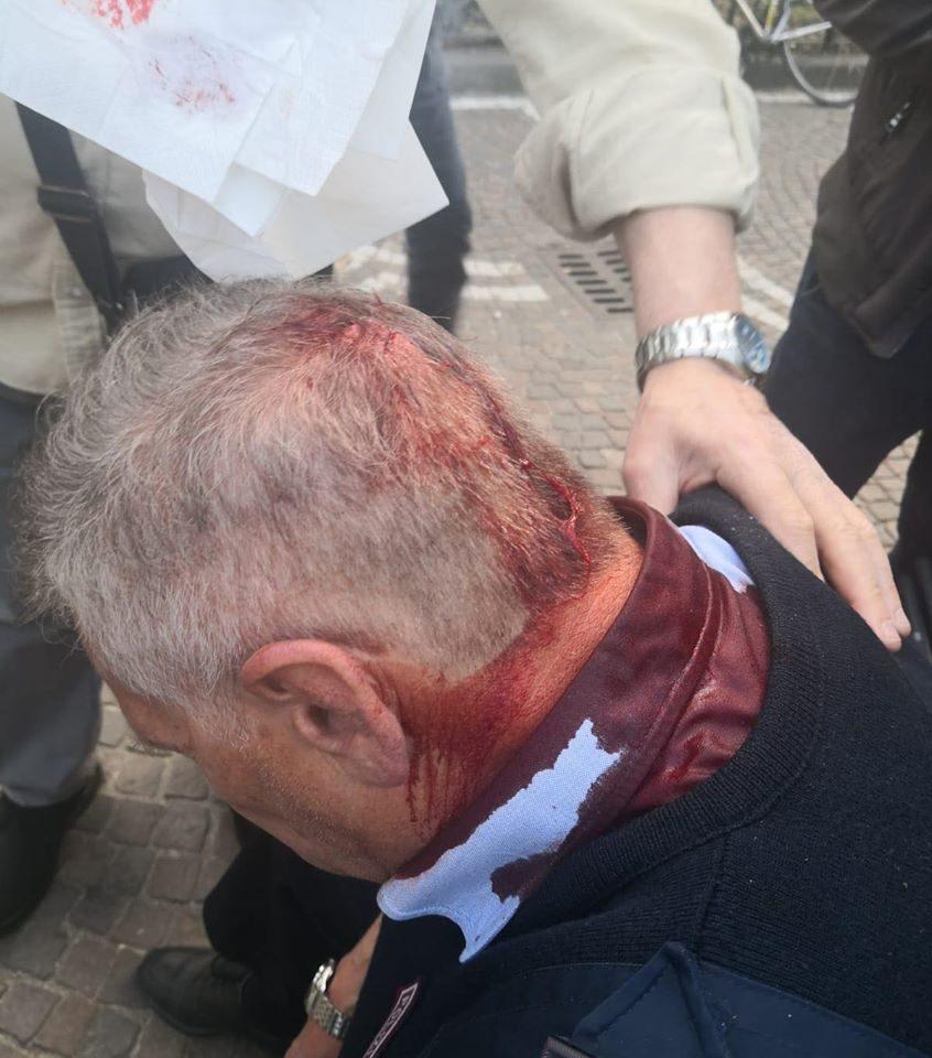 Il vigile urbano ferito dopo l'aggressione. [Foto di Michele Emiliano, sindaco di Crispano]