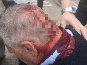 Il vigile urbano ferito dopo l'aggressione.