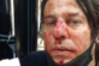 Omicidio Floyd, fotografo napoletano picchiato durante manifestazione dell'estrema destra a Londra
