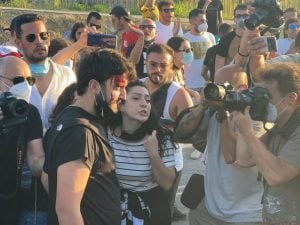 Un manifestante ferito quest'oggi a Mondragone durante le cariche di polizia. [Foto C. Benincasa per Fanpage.it]